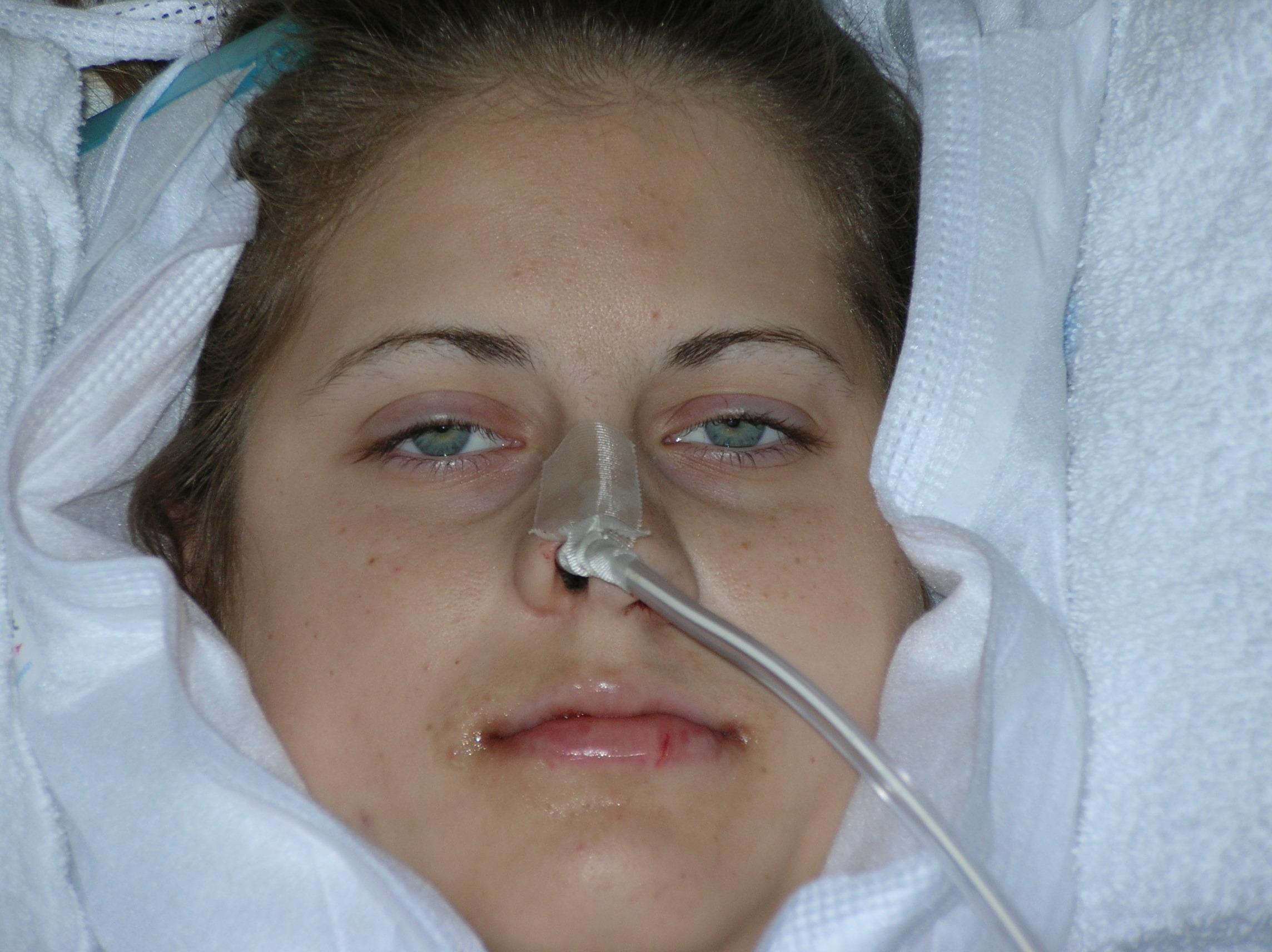 jaw surgery | twentyfifth year